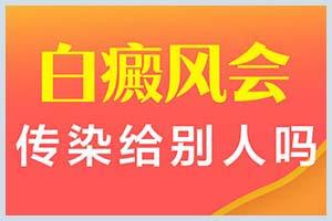 郑州西京和那个是一个医院吗-看白癜风贵吗-好挂号吗